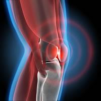 オーダーメイド(PSI)人工膝関節置換術について