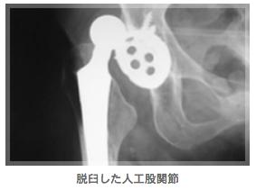 脱臼した人工股関節