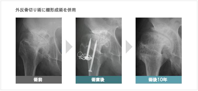 外反骨切り術に棚形成術を併用