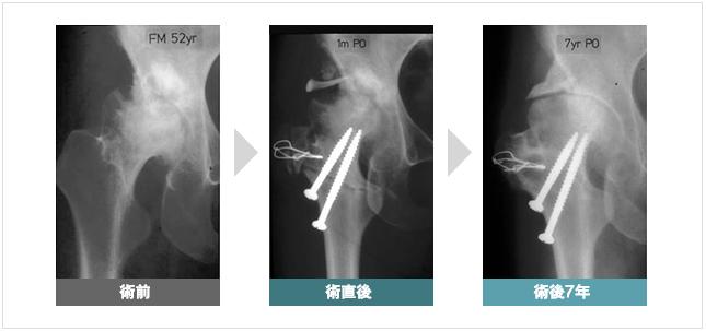 関節固定術