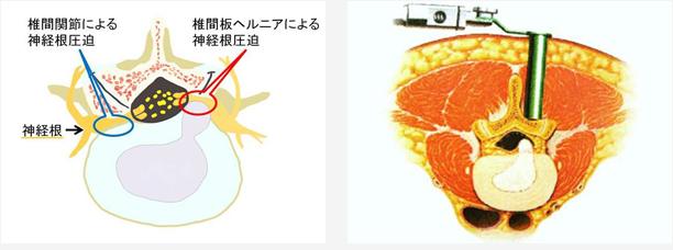 腰椎椎間板ヘルニア、頸椎椎間板ヘルニア