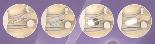 骨粗鬆症性椎体骨折の治療