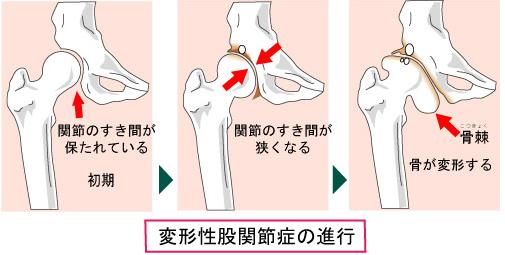 「股関節症イラスト」の画像検索結果