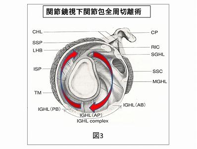 関節鏡視下関節包全周切離術