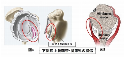 下関節上腕靭帯・関節唇の損傷