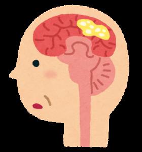 認知症(レビー小体)