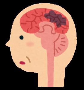認知症(脳疾患)