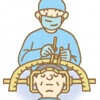 高周波凝固手術 (RF)と集束超音波治療 (FUS)