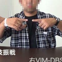 ジストニアの外科治療(視床刺激療法:視床DBS)▶動画