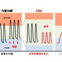 脳深部刺激療法(DBS)とレボドパカルビドパ経腸療法 (LCIG)