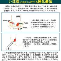 いぼ痔(内痔核)に対する硬化療法
