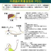 内視鏡的胃瘻造設術(PEG)